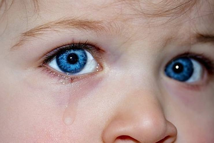 Know About Various Eye Infections In Babies And Their