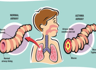 How Do You Get Asthma? Things You Must Know