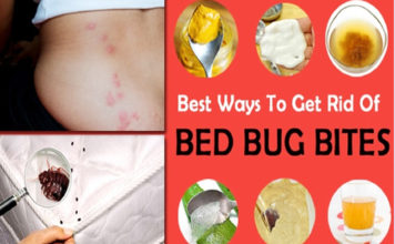 Best Home Remedies For Bug Bites In Children