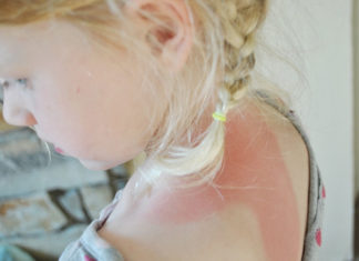 Sunburn-Home-Remedies