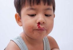 Nosebleed-In-Toddlers