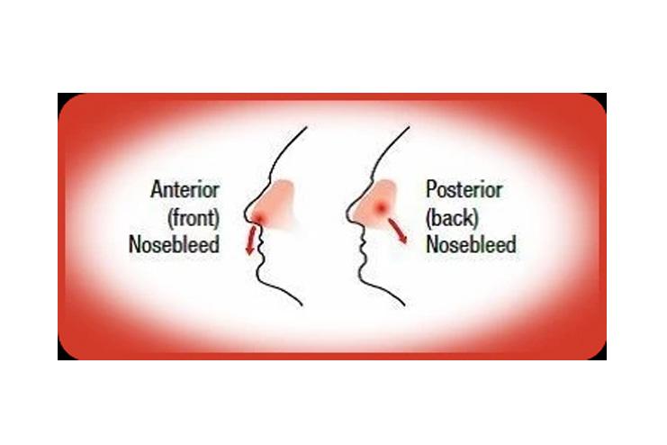 Types-of-nosebleed