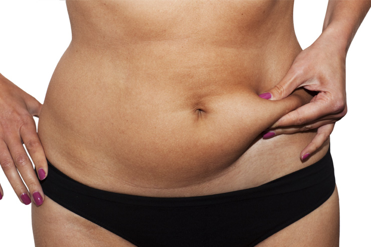 Why-Belly-Fat-after-C-Secti