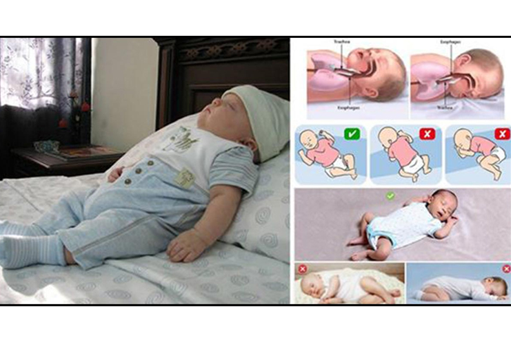 Keep-your-childs-head-in-elevated-position-while-sleeping