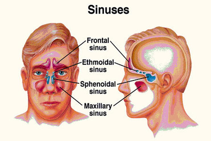 Types-of-sinus-infections-in-babies