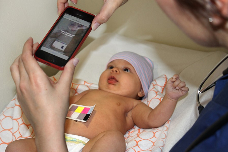 How-to-diagnose-Jaundice-in-Babies